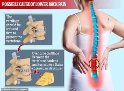 Illustration of Causes Of Pain In The Left And Hardened Lumbar?