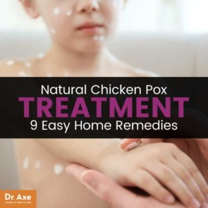 Illustration of Overcoming Chicken Pox That Fester And Feels Hot?