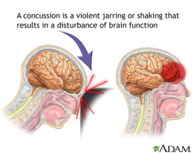 Illustration of Difficulty Walking And Memory Loss After A Head Hit?