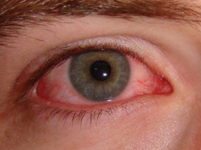 Illustration of Duration Of Conjunctivitis Will Be Completely Cured?