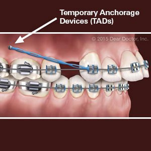 Illustration of The Use Of Braces To Tighten Toothless Teeth?