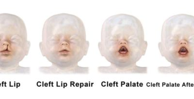 Illustration of Speech Is Still Unclear Or Normal After Cleft Lip Surgery?