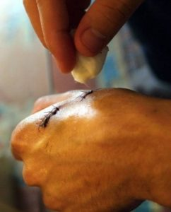Illustration of The Suture Is Too Tight?