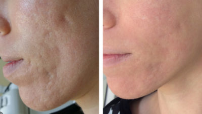 Illustration of Remove Acne Scars By Laser?