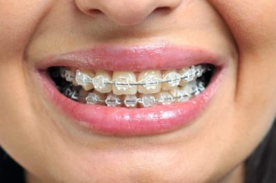 Illustration of There Haven't Been Any Good Results After Using Braces For 3 Years?