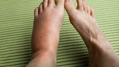 Illustration of Swollen Feet To Redness Like Insect Bites?