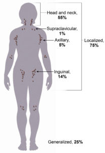 Illustration of Special Treatment For Lymphadenopathy?