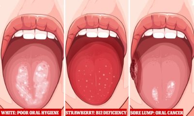 Illustration of Tongue That Is White And Accompanied By Fever?