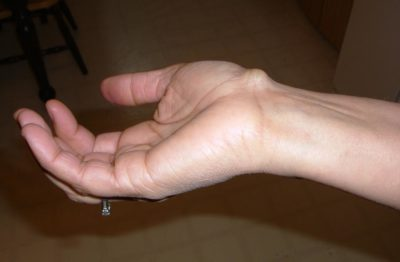 Illustration of Lump In The Skin Of The Hand, Hard But Not Painful When Pressed?