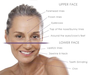Illustration of The Forehead Is Often Frowned And It Is Difficult To Smile?