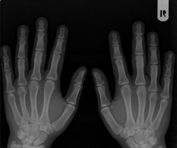 Illustration of Effect Of Consumption Of Milk Soda On X-rays?