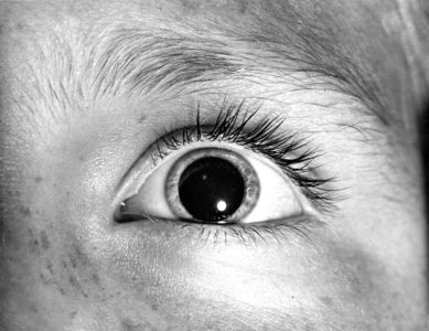 Illustration of The Pupil Size Remains Small Even In A Dark Room?
