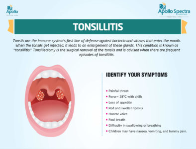 Illustration of Surgical Handling Of The Tonsils?
