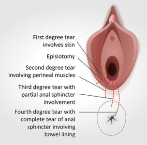 Illustration of Tears Of The Birth Canal During Childbirth?