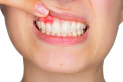 Illustration of Overcoming Swollen Gums That Cover The Teeth?