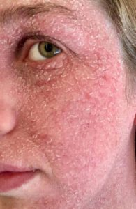 Illustration of Red, Peeling And Burning Skin After Using Whitening Lotion?