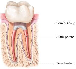 Illustration of How To Find Out The Roots Of Natural Teeth And The Roots Of Milk Teeth?
