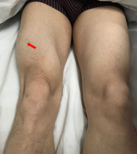 Illustration of Body Weakness And Knee Pain After Taking TB Drugs?