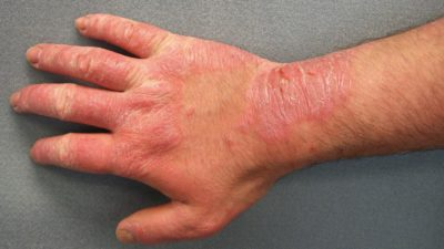 Illustration of Red Rash On The Skin Of The Fingers, Arms And Underarms Feels Sore?