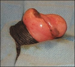 Illustration of Swelling Of The Penis After Circumcision?