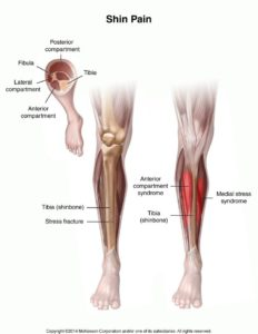 Illustration of The Cause Of The Calf Bone Pain?