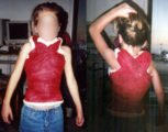 Management Of Scoliosis In Children Aged 1 Year?