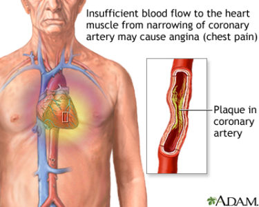 Illustration of Chest Pain Such As Angina When The Body Is Tired And Stressed?
