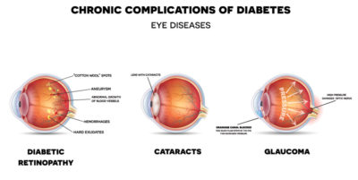 Illustration of Prevention Of Complications Of Eye Disorders In Diabetics?