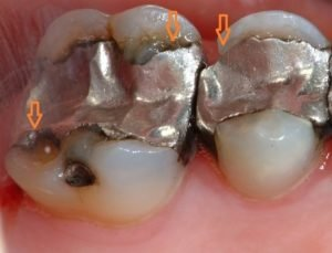 Illustration of Pain In The Tooth Filling?