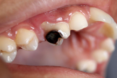 Illustration of Causes Of Water Out Of Cavities?