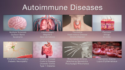 Illustration of The Possibility Of Autoimmune Disease Can Be Cured?