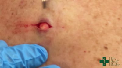 Illustration of Overcoming Lipoma On The Back And Bleeding?