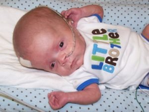 Illustration of How To Deal With Hydrocephalus In A 9 Month Old Baby?