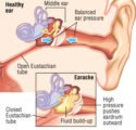 Ear Pain With Fever?