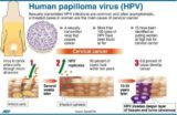 Can The HPV Virus Cause Cervical Cancer?