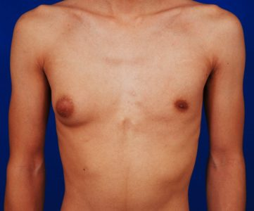 Illustration of The Causes Of The Areola Of The Breast Are One-sided?