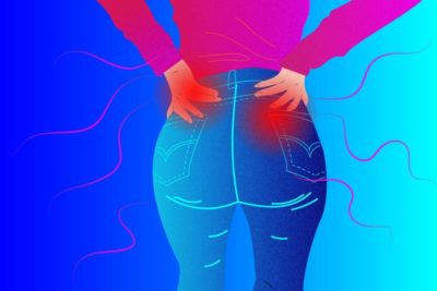 Illustration of Pain That Feels In The Buttocks Area And Feels Stiff?
