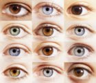 The Right And Left Eye Is A Different Color When Looking At The Focus On One Object In People With High Minus?