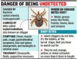 Examination To Detect Typhus In A 2 Year Old Baby?
