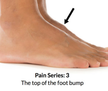 Illustration of The Lump Is Close To The Ankle And Is Red In Color?