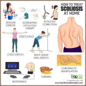Illustration of How To Treat Scoliosis At Home?