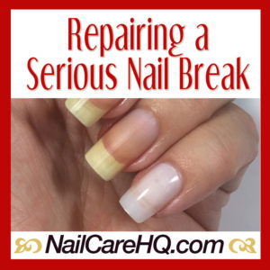 Illustration of Handling Broken Nails Due To An Accident?