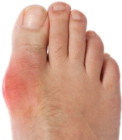 Illustration of Appropriate Treatment For Gout In The Elderly?