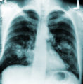 X-rays Of The Lungs?