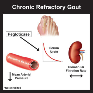 Illustration of Treatment Of Hypertension, Obesity, Gout And High Cholesterol?
