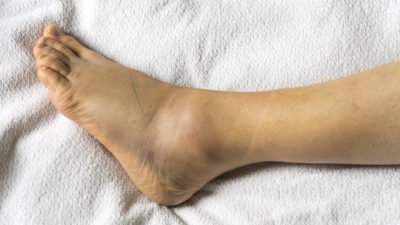 Illustration of How Long Does It Take To Heal A Torn Ankle Ligament?