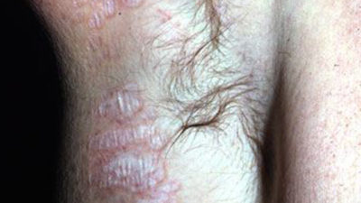 Illustration of White Spots Occur On The Genitals Due To The Use Of Soap?