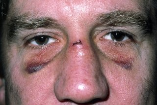 Illustration of Swelling Of The Nose And Bleeding After The Impact?