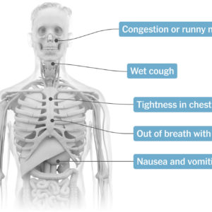 Illustration of Cough Accompanied By Chest Tightness And Lightheadedness?