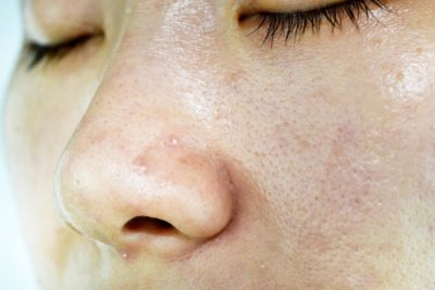 Illustration of Handling Of Oily, Acne-filled And Sensitive Skin?